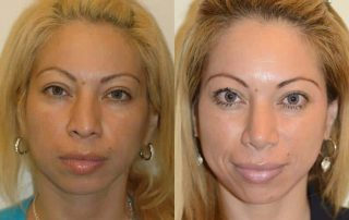Dremafiller before and after