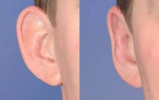 Earlobe Reduction Techniques