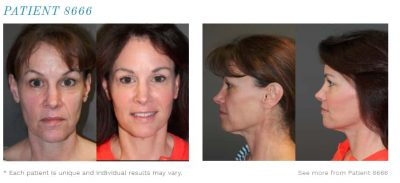 Patient done plastic surgeon - before and after